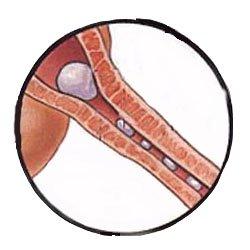 Blocked urethra in cat: image via maxshouse.com